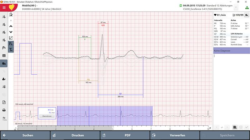 EKG-Vermessung